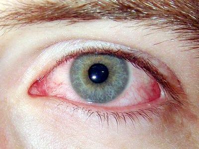 Запалення очей, лікування травами, рецепти
