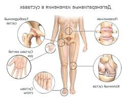 Фото - Весняні хвороби: суглобові болі